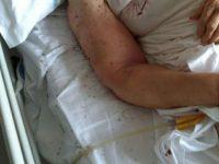 Altro caso di malasanità in Campania: paziente abbandonata in un letto con le formiche
