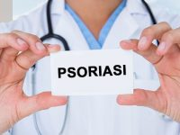 """Psoriasi: basta  """"bufale"""" su cure e farmaci innovativi"""