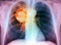 La Campania è la regione con il maggior numero di tumori al polmone